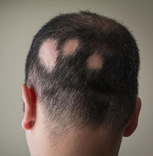 alopecia areata solutions malaysia