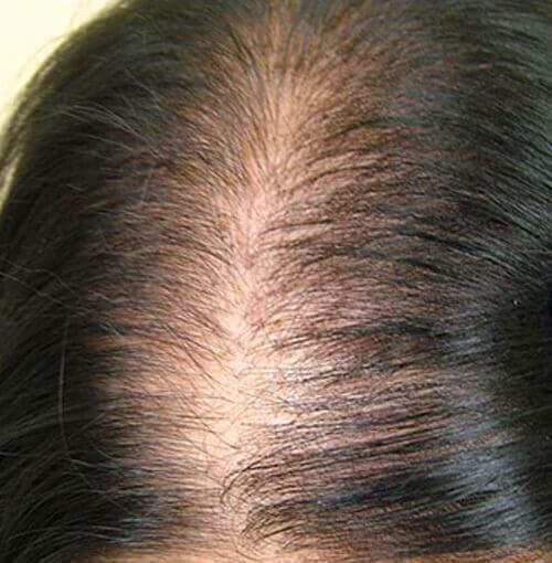 female pattern baldness solutions