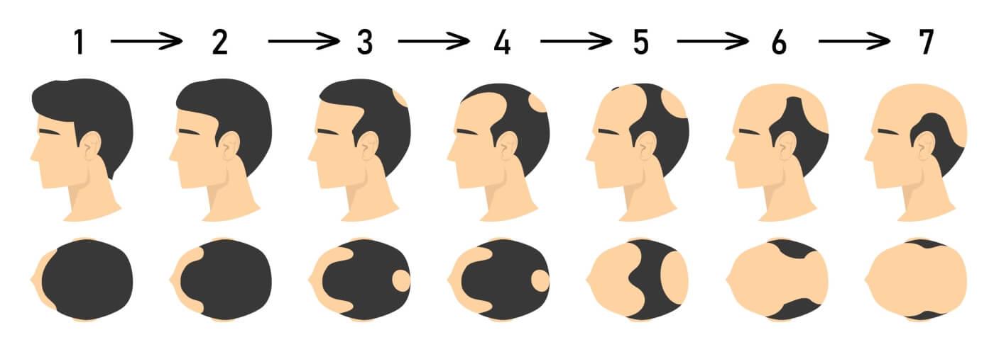 male pattern hair loss treatment